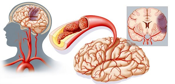 Как распознать инсульт – основные признаки и симптомы